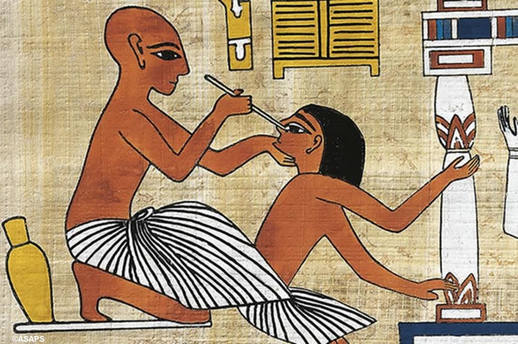 Cirugía en el antiguo egipto